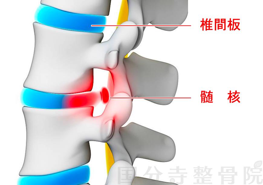 椎間板と髄核